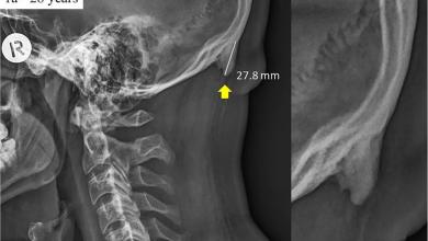 Phone overuse makes millennials grow spikes on their skulls 390x220 - دراسة جديدة تكشف عن ظهور تغييرات في شكل جماجم مستخدمي الهواتف الذكية